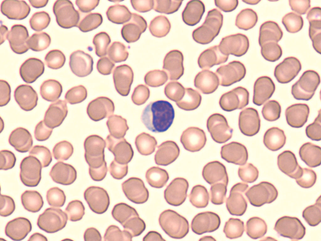 Large Lymphocyte