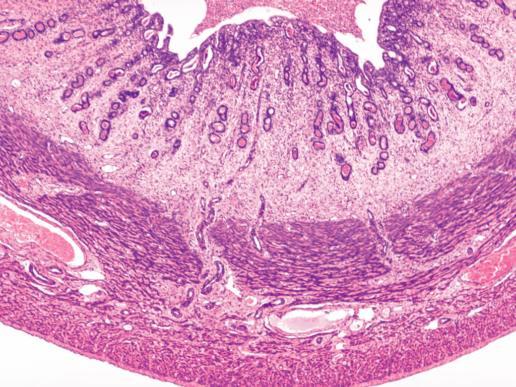 Histology   YaleUterus Histology Functional Layer