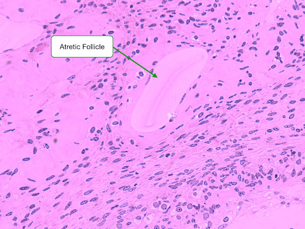 ovary and follicle development