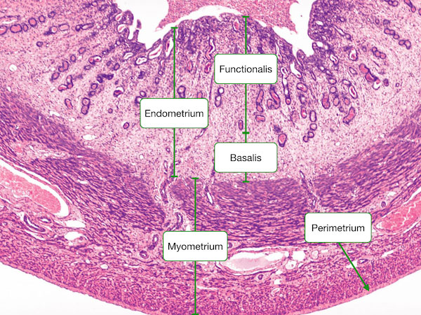 endometrium histology - photo #16