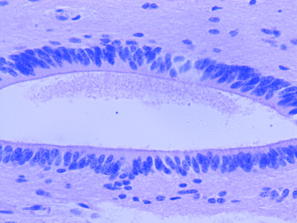 Ependymal Cells - photo#49