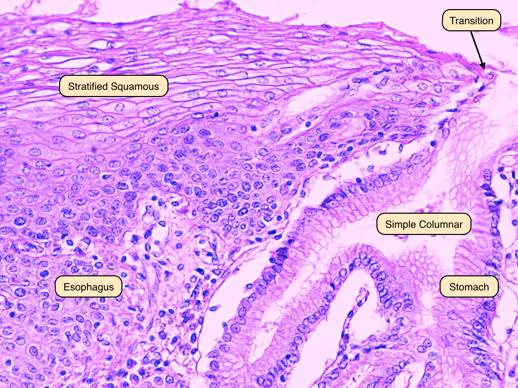 Renal hilum in addition Imagenes Con Nombres Del Aparato Respiratorio IeKaykzMb as well Heart gross list page moreover Stratified Squamous Epithelial Cells likewise Cat guide key. on artery of the in labeling exercise