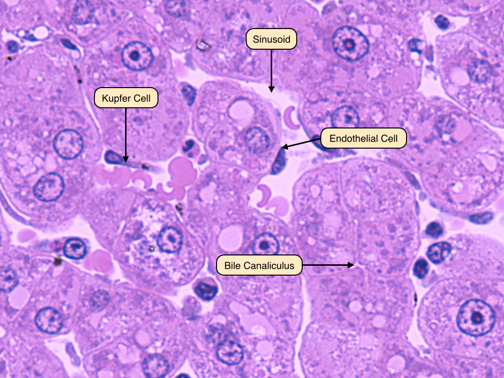 hepatocytes_and_sinusoids_labels, Human body