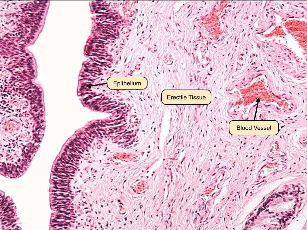 Male reproductive system lab note the blood vessels contained in the erectile tissue during erection the arteries dilate to fill the sinuses which obstruct venous outflow and traps ccuart Choice Image